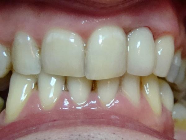 Ryc. 10 Stan bezpośrednio po zacementowaniu korony pełnoceramicznej na zębie 22