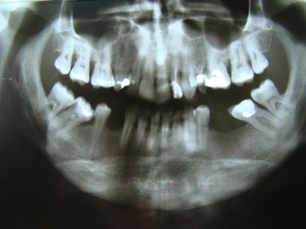 Ryc. 2 Zdjęcie pantomograficzne