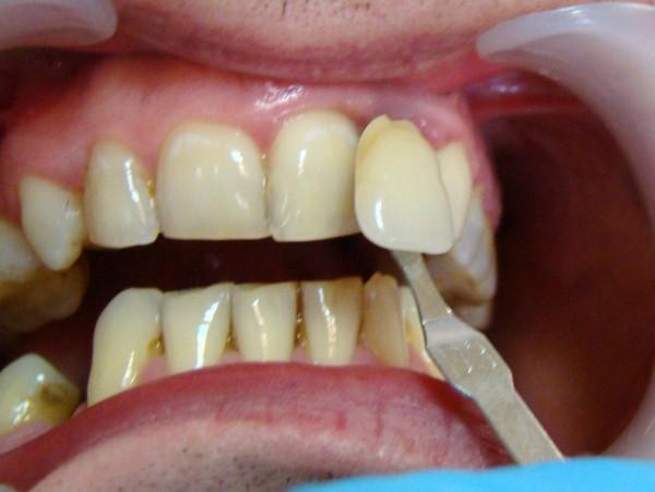 Ryc. 3 Dobór koloru zęba 22