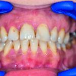 Włókniak prawdziwy błony śluzowej jamy ustnej – opis przypadku