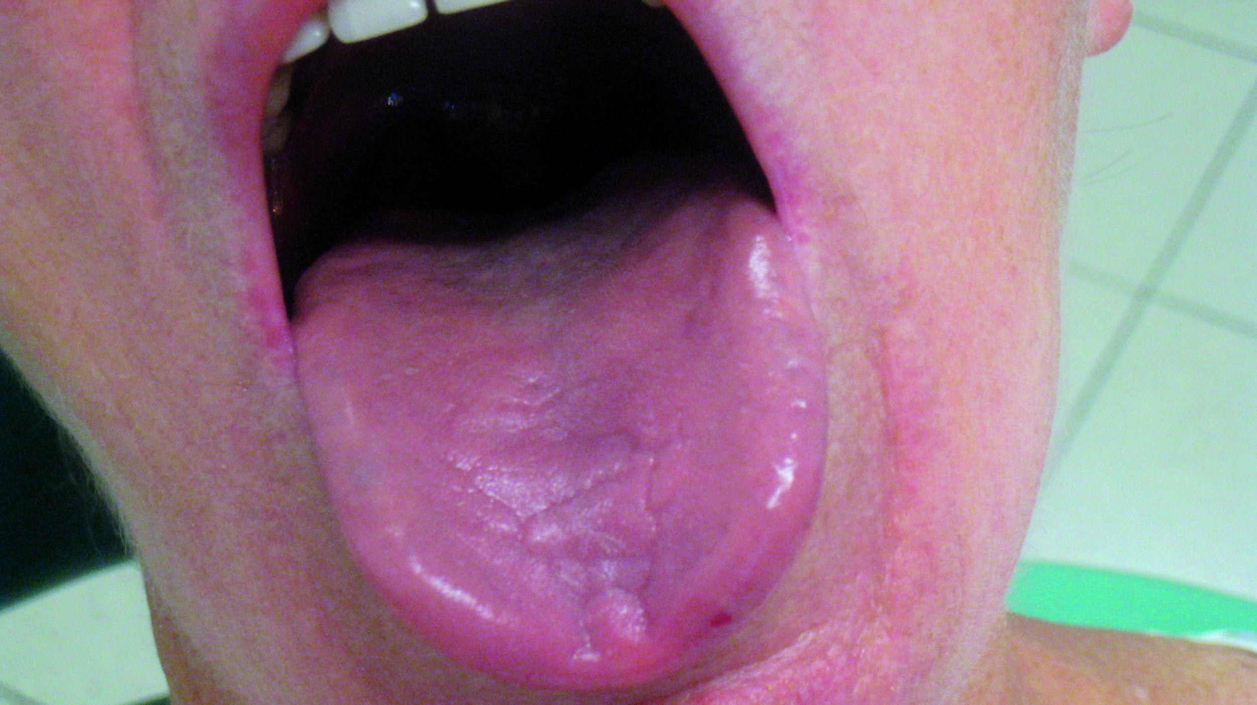 Obraz Jamy Ustnej W Wybranych Chorobach Ogolnoustrojowych Rola