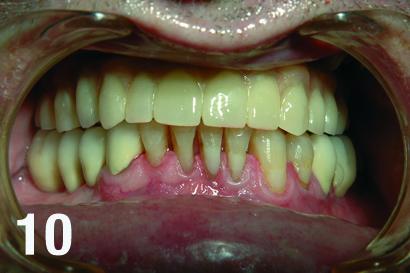 Zdjęcie pacjenta po umieszczeniu implantoprotezy