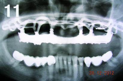 Pierwsze kontrolne zdjęcie radiologiczne