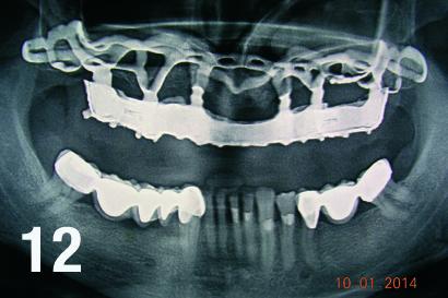 Porównacze zdjęcie radiologiczne