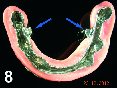 Implantoproteza