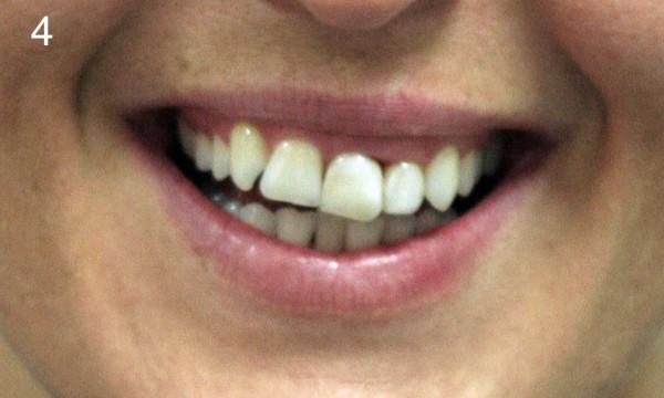 fot. 4 Uśmiech pacjentki z wyraźną dysharmonią