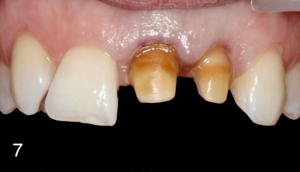 fot. 7 Zęby 21,22 oszlifowane pod korony tymczasowe