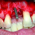 Rehabilitacja pacjentki dotkniętej chorobą przyzębia w oparciu o implantację natychmiastową. Wyniki pięcioletnich obserwacji