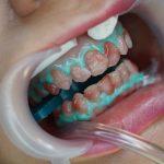 Techniki nowoczesnej stomatologii umożliwiające poprawę kosmetyki, kształtu i ustawienia zębów