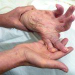 Stomatologiczne spojrzenie na pacjenta z reumatoidalnym zapaleniem stawów