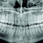 Anatomia rentgenowska zdjęć pantomograficznych