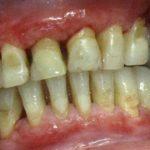 Nadwrażliwość zębiny