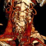 Anomalie naczyniowe w obrębie naczyń szyjnych a nowotwory regionu głowy i szyi – trudności diagnostyczne. Opis przypadku