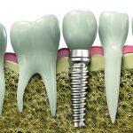 Czy istnieje implant idealny?