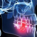 10 domowych sposobów na ból zęba
