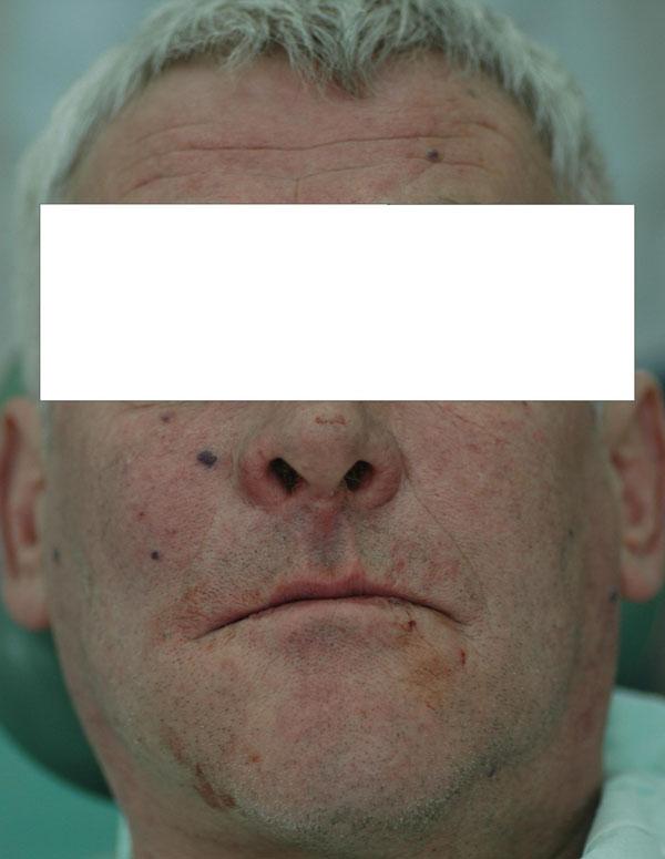 Fot. 1. Pacjent en face.