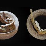 Wady zgryzu i stłoczenia pojawiły się 12 tys. lat temu