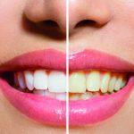 Planujesz wybielanie zębów? O tym musisz wiedzieć!