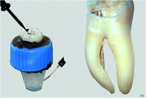 Fot. 1. W statywie widać korzeń zęba umieszczony w plastikowej tutce z roztworem agaru, z obiema elektrodami endometru (po lewej), i trzonowiec szczęki z kanałem korzeniowym sperforowanym przez metalowy sztyft (po prawej).
