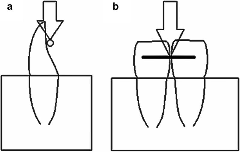 Rys. 1. Schematyczny rysunek modelu doświadczalnego: a. widok boczny, b. widok powierzchni ustnych.