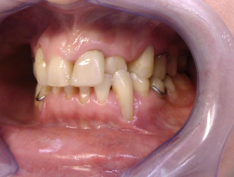 Fot. 2. Zdjęcie wewnątrzustne – ząb 23 w zgryzie krzyżowym.