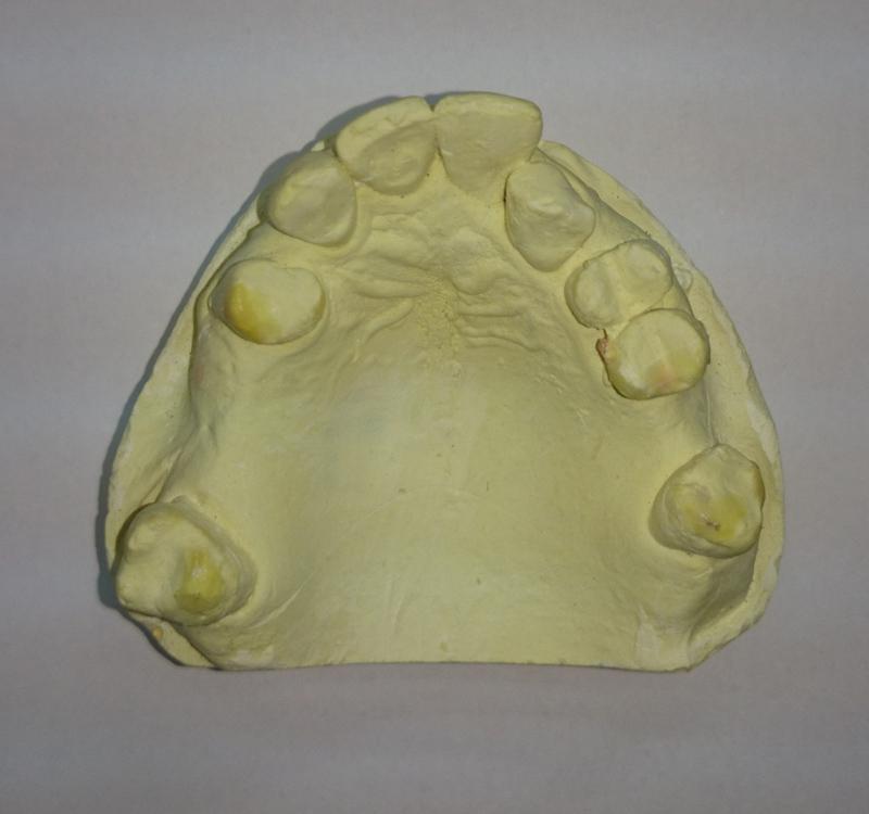 Fot. 4. Model diagnostyczny przed leczeniem.