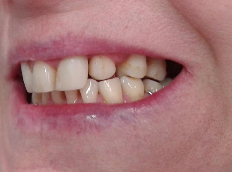 Fot. 6. Zdjęcie wewnątrzustne – wychylony ząb 23 po 4 miesiącach leczenia.