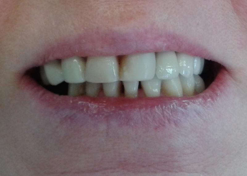 Fot. 7. Zdjęcie wewnątrzustne – ząb 23 pokryty koroną metalowo-ceramiczną.