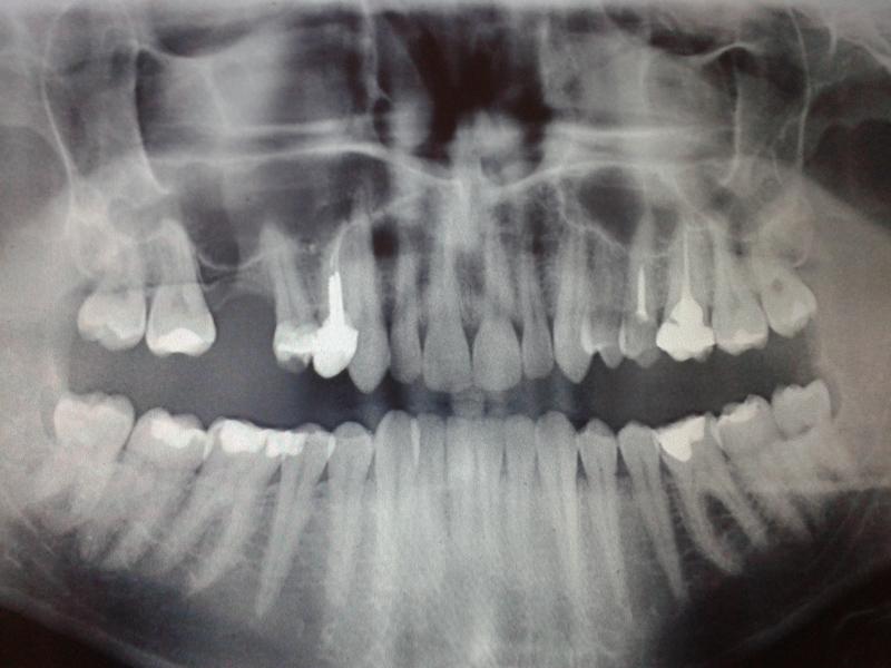 Fot. 1. RTG pantomograficzne wykonane przed podjęciem leczenia.