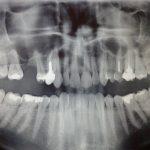 Stożkowa tomografia komputerowa (CBCT) w diagnostyce zmiany zapalnej wyrostka zębodołowego szczęki – opis przypadku