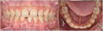 Fot. 1. Zdjęcie wewnątrzustne 15-letniego pacjenta przed leczeniem.