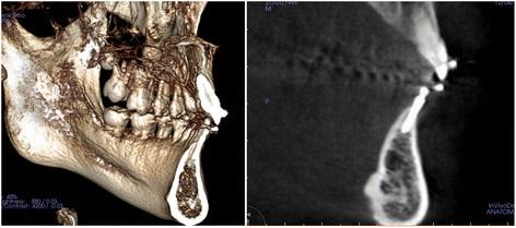 Fot. 5. Zdjęcia CBCT po zabiegu. Ponieważ blaszka policzkowa kości wyrostka zębodołowego była wklęsła, nieuniknione było nachylenie implantu w kierunku policzkowym.