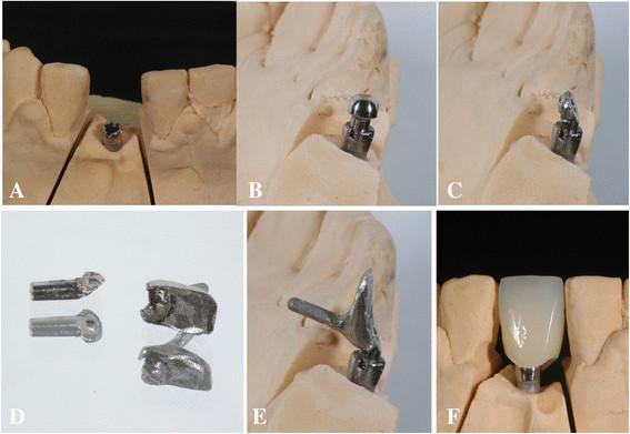 Fot. 6. Laboratoryjna część procedury. A i B. Odlew modelowy i gotowa główka implantu C. C. Główka została sfrezowana, by skorygować kąt implantu.  D. Językową część łącznika odlano techniką traconego wosku. E. Gotowa główka implantu została zespawana laserowo z dopasowaną językową częścią łącznika.  F. Wykonano odbudowę zęba techniką pośrednią z materiału kompozytowego (Sinfony, 3 M ESPE, USA).