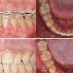 Wykorzystanie w prowizorycznym uzupełnieniu dwuczęściowego implantu ortodontycznego typu C z laserowo spawaną nadbudową – opis przypadku