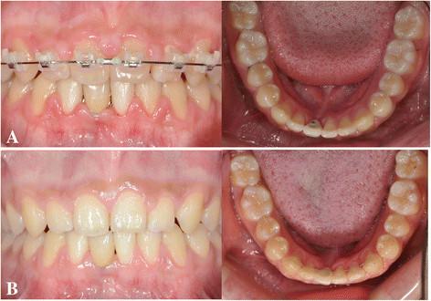 Fot. 7. Stan po leczeniu i retencji. A. Zdjęcie wewnątrzustne po zacementowaniu ceramicznej korony.  B. 1 rok po retencji.
