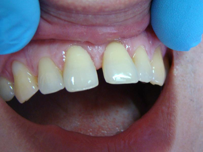 Fot. 6. Stan wyjściowy – drugi przypadek kliniczny.