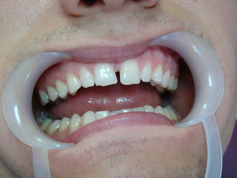 Fot. 8. Stan wyjściowy – trzeci przypadek kliniczny.
