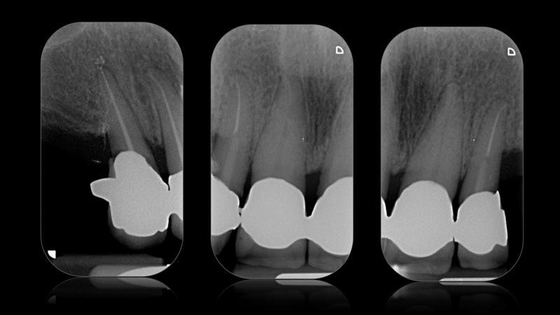 Fot. 2. Zdjęcia rentgenowskie pokazują nierokujące zęby w odcinku przednim szczęki.