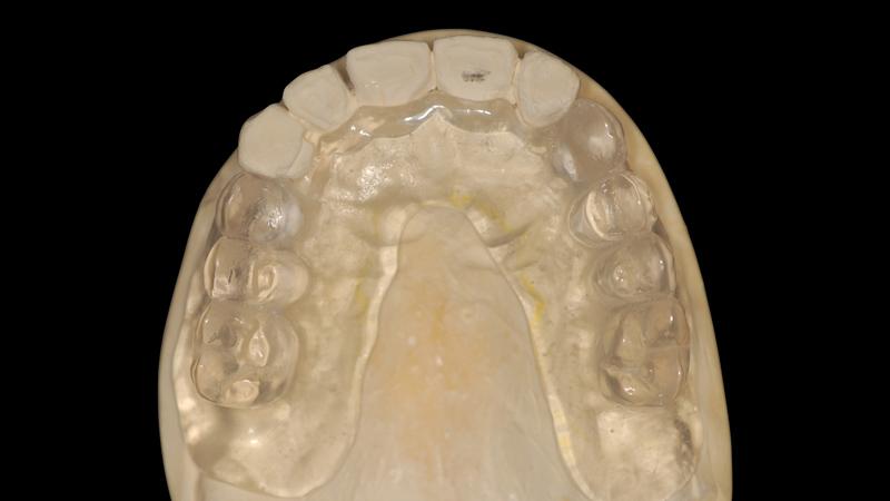 Fot. 3. Po pobraniu pierwszego wycisku wykonany został model roboczy, a na bazie nawoskowania diagnostycznego (wax-upu) przygotowany zostaje szablon diagnostyczny.