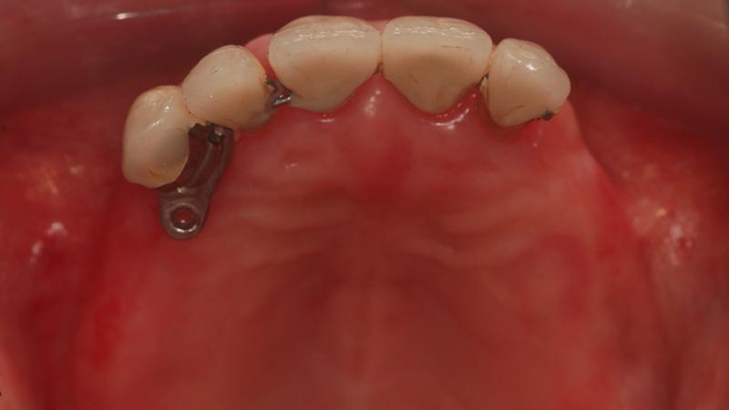 Fot. 7. Widok od strony okluzji na pozostałe nierokujące zęby.