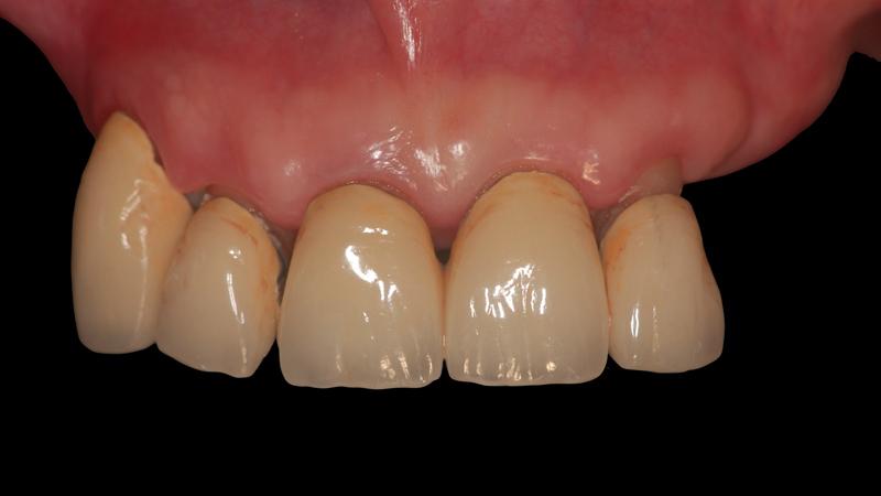 Fot. 8. Widok z przodu na pozostałe nierokujące zęby.