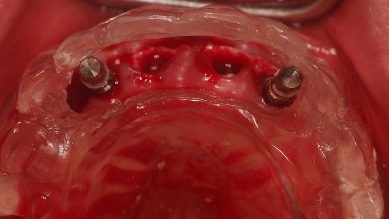 Fot. 13. Implanty w odcinku przednim są wprowadzane zgodnie  z pozycjami ustalonymi w szablonie.