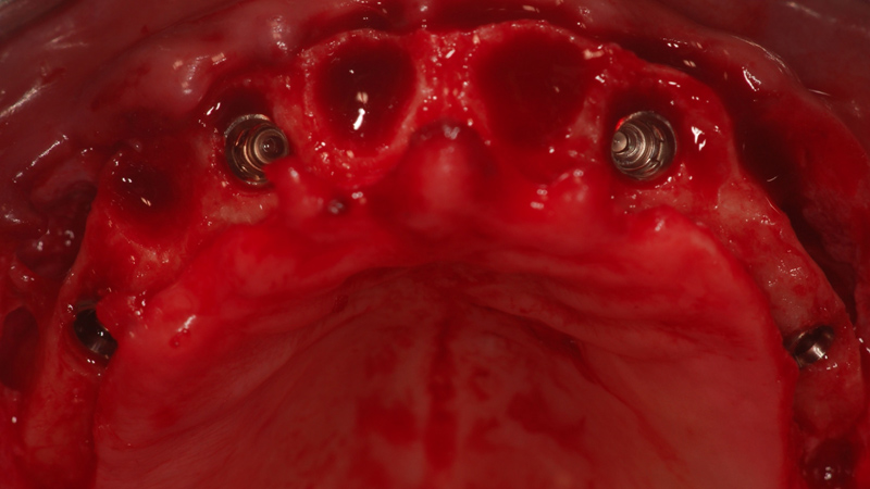 Fot. 14. Widok od strony okluzji na cztery implanty BL w zaplanowanych pozycjach.