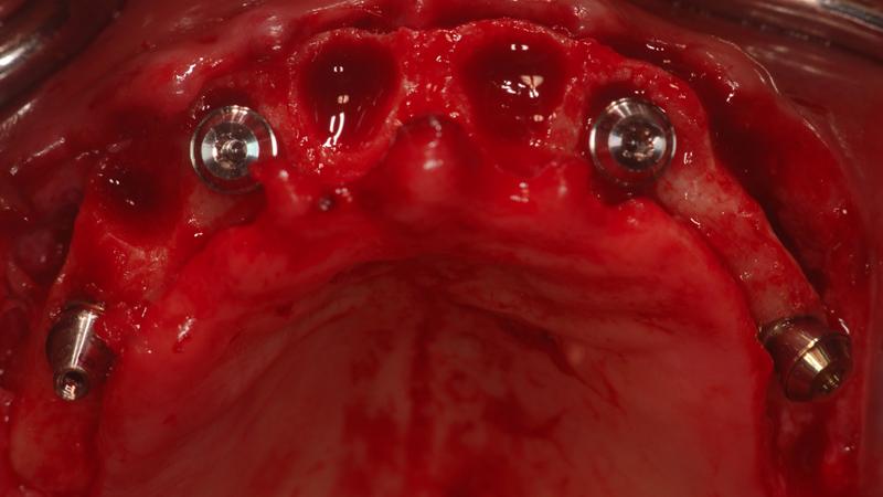 Fot. 15. Następny krok to przykręcenie łączników Multi-Base (3 proste i 1 kątowy) na implantach.