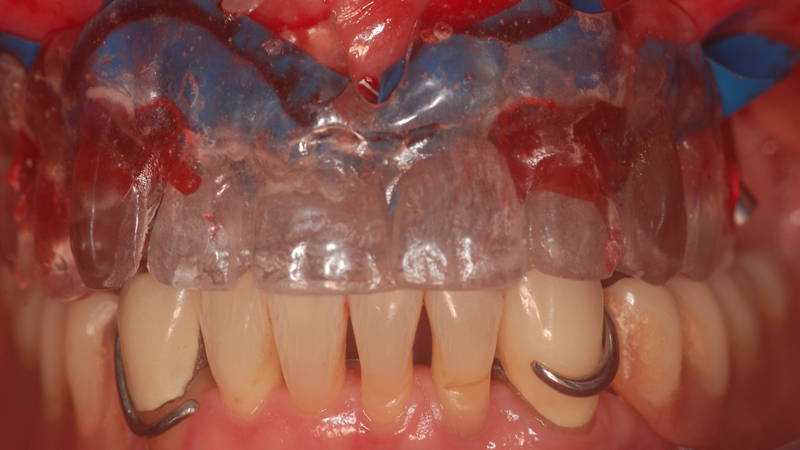 Fot. 17. Szablon chirurgiczny może zostać wykorzystany jako łyżka wyciskowa. Po zabezpieczeniu obszaru zabiegu koferdamem podbudowy zostają połączone z szablonem żywicą w celu dokładnego zarejestrowania pozycji implantów i ich wiernego przeniesienia do pracowni techniki dentystycznej. W trakcie polimeryzacji żywicy pacjent zwiera usta do prawidłowej okluzji, co zapewnia przeniesienie właściwych warunków zgryzowych.
