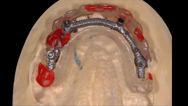 Fot. 20. Zgodność szkieletu tytanowego z zaplanowanymi pozycjami zębów jest sprawdzana również za pomocą szablonu.