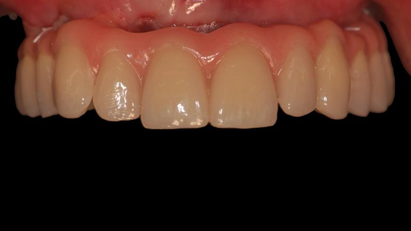 Fot. 26. Widok z przodu na pracę protetyczną w jamie ustnej pacjentki.