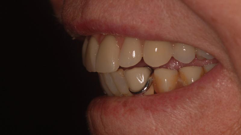 Fot. 29. Widok na pracę protetyczną w jamie ustnej pacjentki po zakończeniu leczenia.