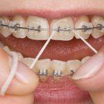 Analiza porównawcza w trójwymiarze tworzenia się wczesnego biofilmu na trzech różnych materiałach ortodontycznych