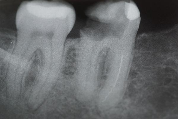 Fot. 2. RTG dostarczone przez pacjentkę.